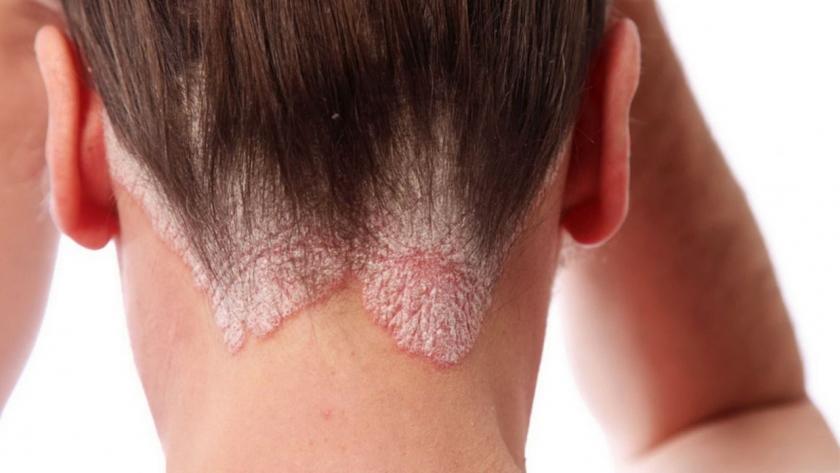 Forfora e Dermatite Seborroica: cosa sono e come ...